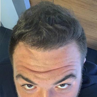пересадка волос в Спб