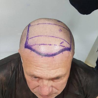 пересадка волос форум