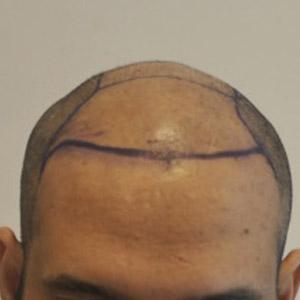 До пересадки волос и после