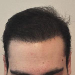 Пересадка волос для мужчин цена