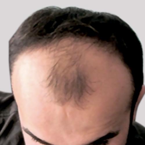 Пересадка волос до после