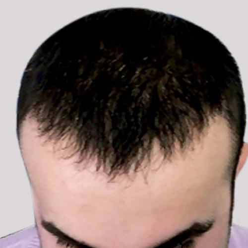 Пересадка волос до и после